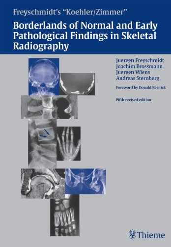 Borderlands of Normal and Early Pathological Findings in Skeletal Radiography PDF