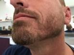 beard trim with 1.5 - 3.5 blades