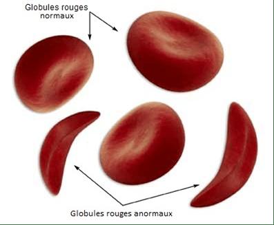 Les différentes types de drépanocytose