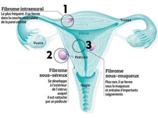Définition du fibrome utérin