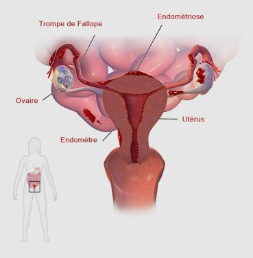 L'endométriose : maladie gynécologique