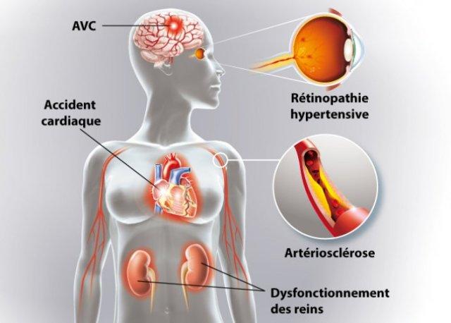 L'hypertension qu'est-ce que c'est