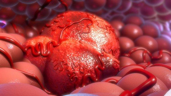 Comment soigner un fibrome définitivement