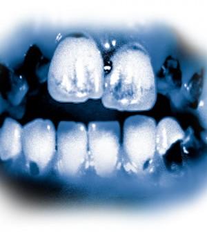 denti e droga