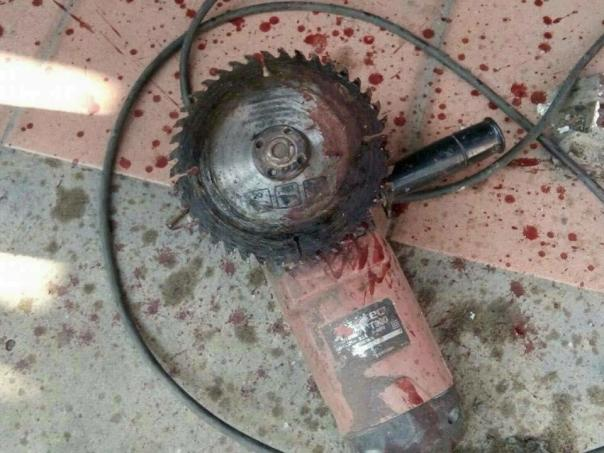 Married Man Accidentally Sliced Through His Own Neck With An Angle Grinder Saw While Fixing His House