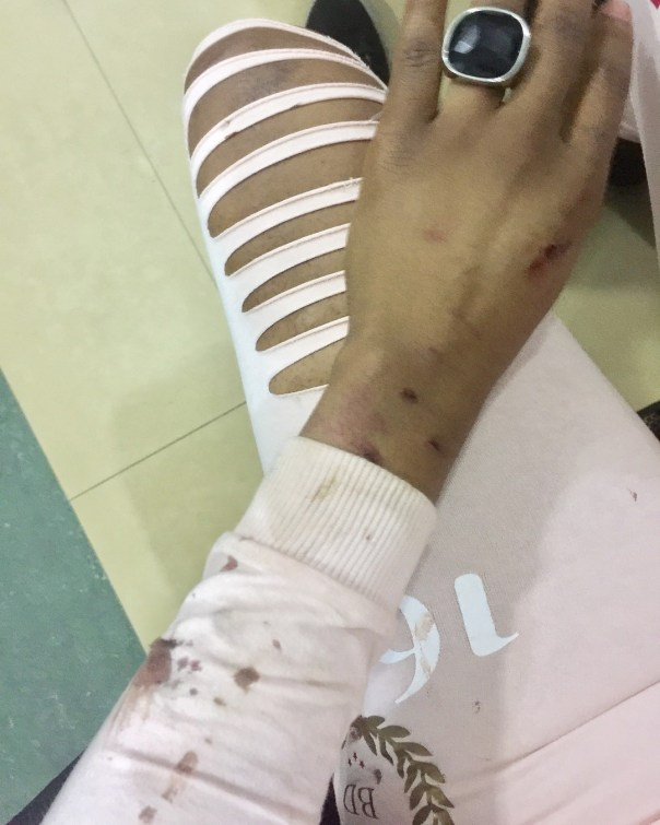 Uche Ogbodo Assaulted By Man Who Hit Her Car (3)