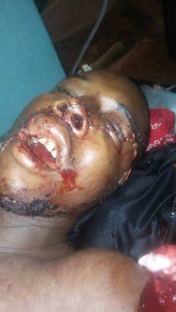 Soldier Dies After Being Shot In The Face By Armed Attackers In Nasarawa (2)