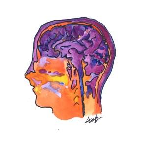 brain differences ODD Disorder