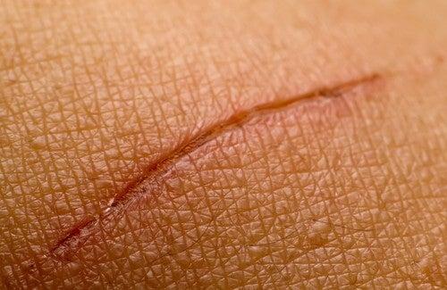 Remèdes naturels pour effacer les cicatrices