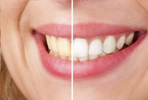 blanchir-les-dents-500x341