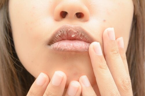 Dry lips of a woman
