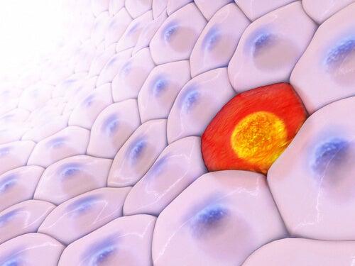 Cellules d'une tumeur