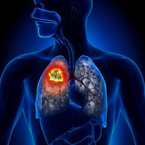 types de cancer du poumon