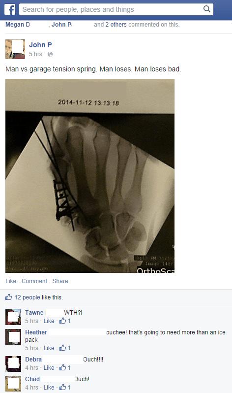 Xray of man's hand broken by garage door spring