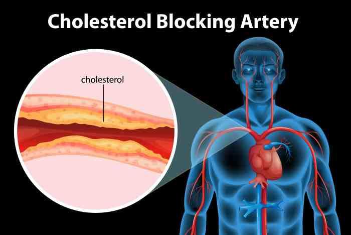 vacuna contra el colesterol