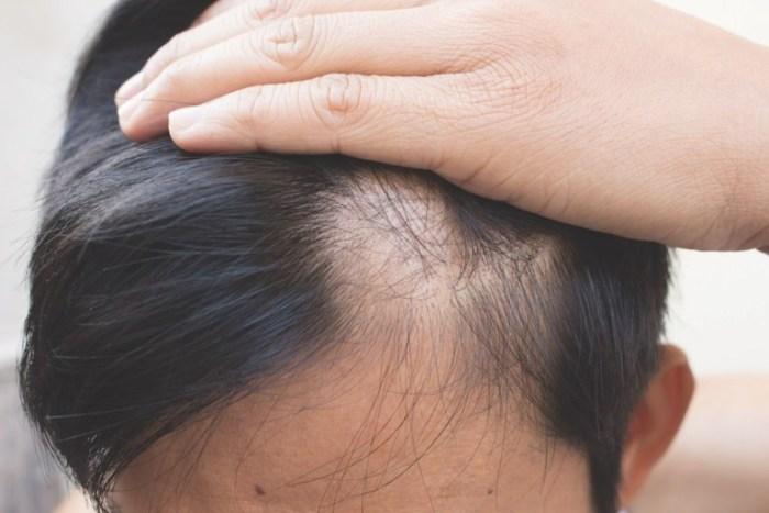 Alopecia nerviosa a partir del confinamiento: cómo evitar y tratar la caída del cabello