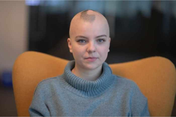 Porqué la alopecia areata afecta a mujeres y cómo tratarla