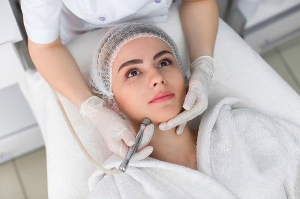 Para realizar la microdermoabrasión, el dermatólogo utiliza un dispositivo para remover la capa superior de la piel.