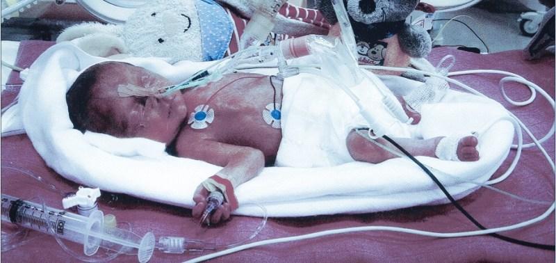 Foto Frühgeborene Tochter