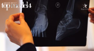 ...and the x-ray results