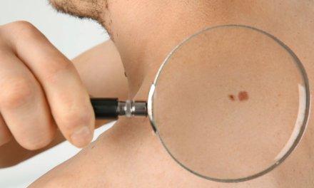 Dezembro Laranja: conheça os tipos de câncer de pele e como evitá-los
