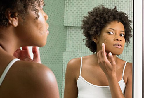 Get Rid of Those Stubborn Pimples With These Remedies