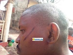 Un homme blessé après avoir été bastonné lors du déguerpissement de Kaporo rails