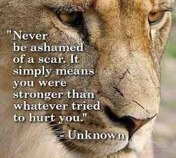 Image result for scars you were stronger than what attacked you
