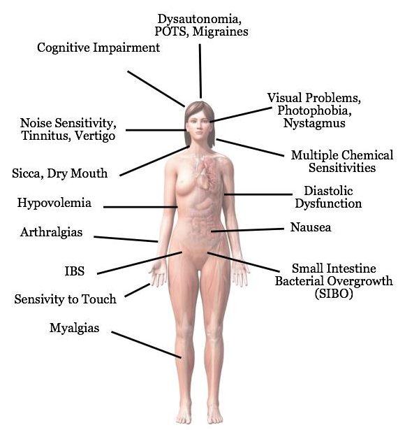 symptoms of me cfs