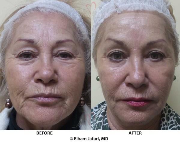 Juvederm Forehead Wrinkles - Year of Clean Water