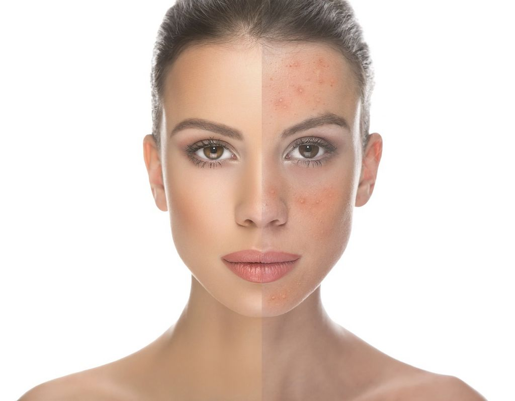 How can I get rid of my rosacea?