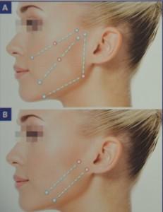 Pommettes, joues,Ovale du visage et cou (non montré)