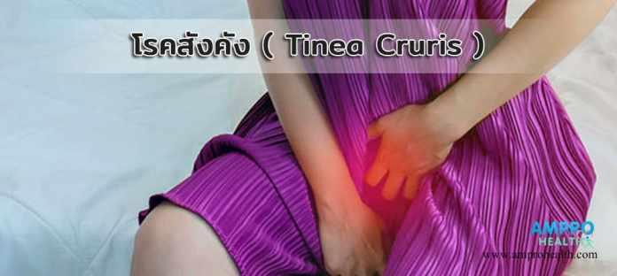 โรคสังคัง ( Tinea Cruris )