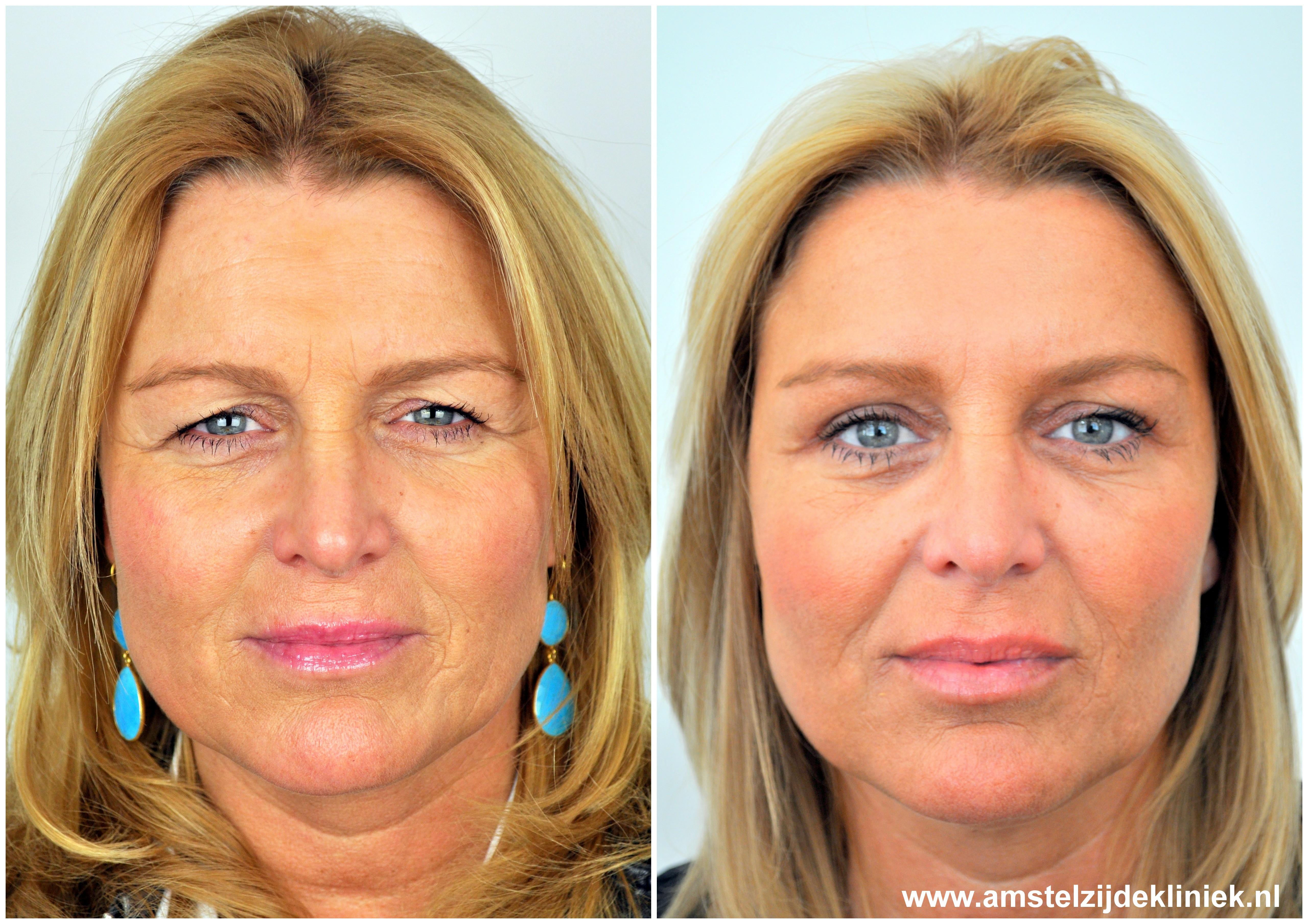 voor en na foto's Botox en ooglidcorrectie