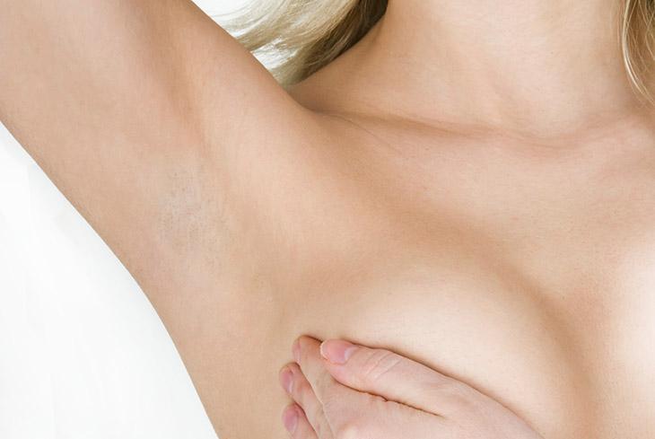 Overmatige transpiratie oksels tegengaan met Botox