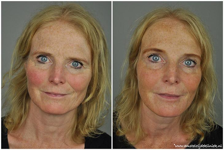Fronsrimpels verwijderen met Botox