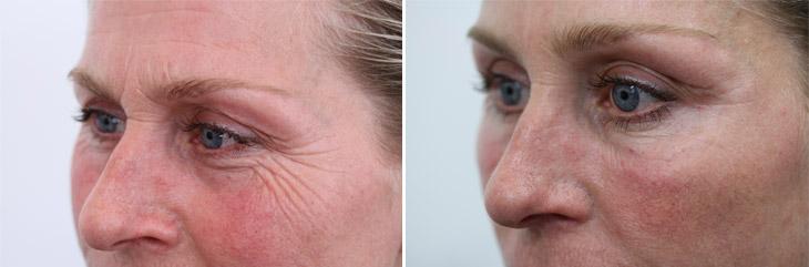 Kraaienpootjes verwijderen met Botox