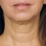 Laserbehandeling voor de hals