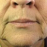Een laserbehandeling voor huidverbetering