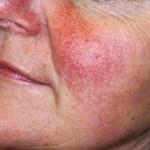 Vaatjes op het gezicht? Laserbehandeling tegen vaatjes