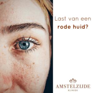 Last van een rode huid in gezicht?