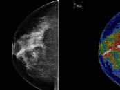 borstkanker