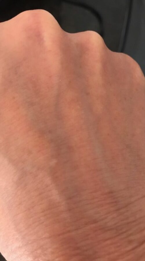 Amy Jean Blog - Nail Mark On Hand