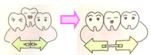 歯科矯正イラスト2