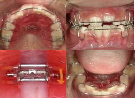 歯科矯正口内