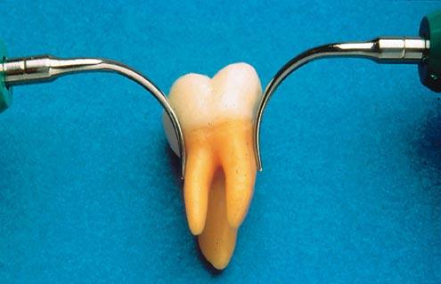 chirurgia stomatologiczna wrocław