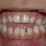 顎関節症治療方法と症例紹介40代主婦Tさんの記事です。