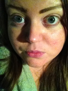 A few hours after the treatment, no makeup!