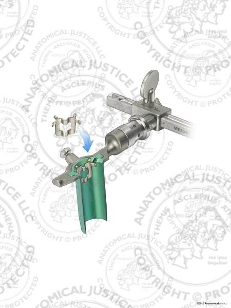 Mini-Open Retractor Surgical Technique Guide