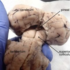Sheep Brain Superior View Diagram How To Make Single Line – Anatomy Corner